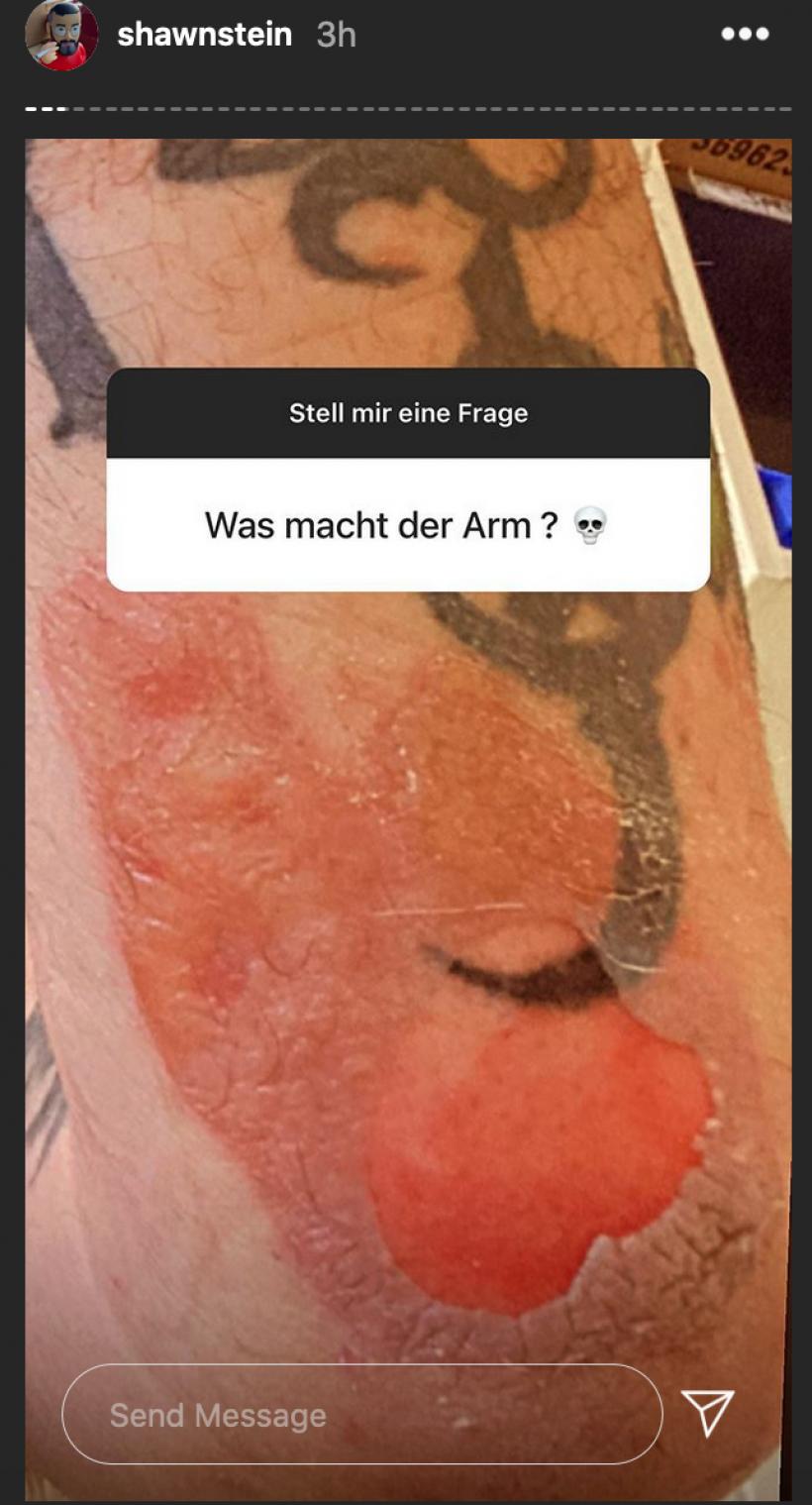 Sido-Wunde-vom-Horrorcamp-Instagram-02.11.2020.png